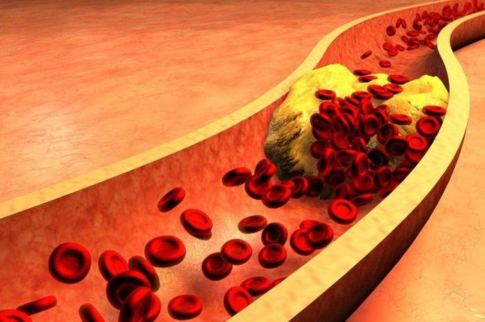 To nie cholesterol odpowiada za rozwój miażdżycy