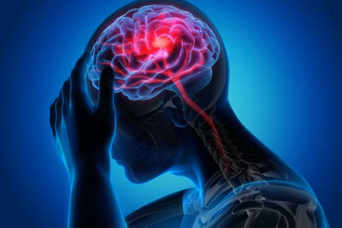 Dieta ketogeniczna w profilaktyce i wspomaganiu leczenia udaru mózgu